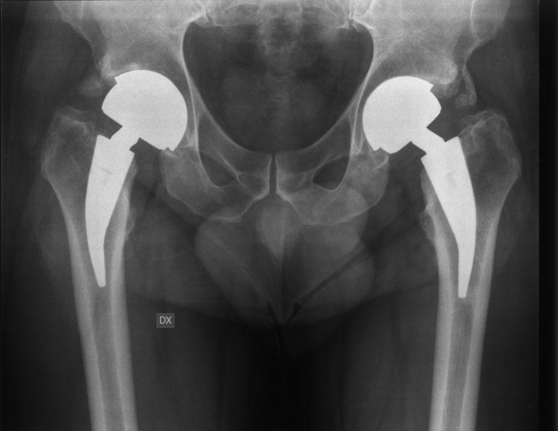 Protesi anca mini invasiva disegnata da Osirix: ce ne parla Michele Massaro