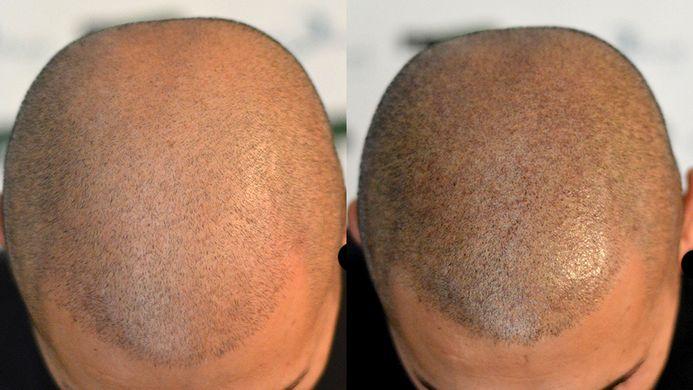 Tricopigmentazione: Il tatuaggio capelli per nascondere le calvizie
